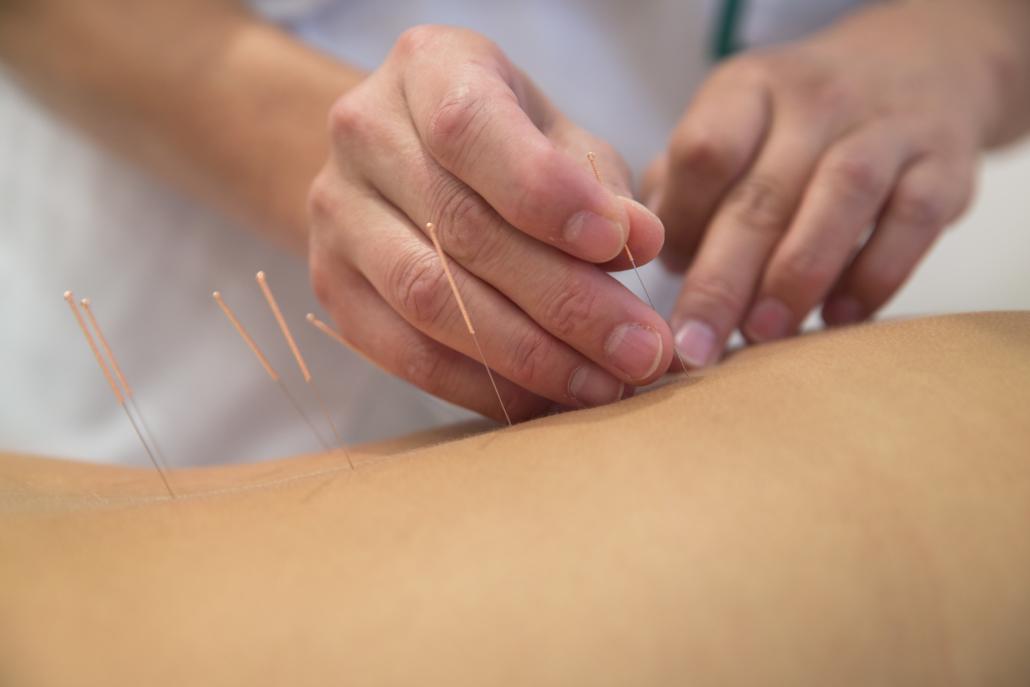 acupunctuur tilburg
